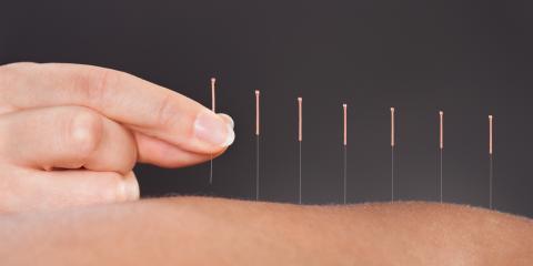 How Acupuncture Treats Chronic Pain, Covington, Kentucky