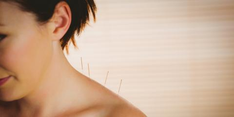 The Dangers of Lack of Sleep & How Acupuncture Can Help, Covington, Kentucky