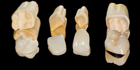 What Is It Like to Get a Dental Crown?, Texarkana, Arkansas
