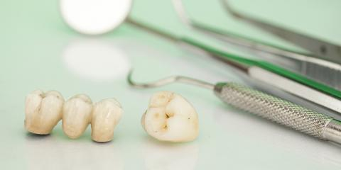 What to Know About Dental Crowns, Anchorage, Alaska