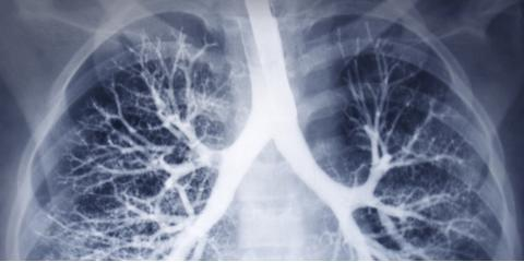 Heart & Lung Health Experts Share 3 Tips for Healthy Lungs, Wolcott, Connecticut