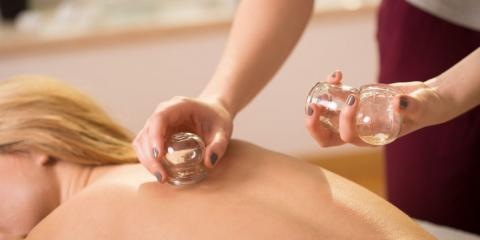 Cupping Therapy in Traditional Chinese Medicine, Babylon, New York