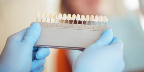 What Do You Need to Know About Dental Implants?, Dansville, New York