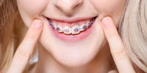 4 Tips for Taking Care of Your Braces, Dansville, New York