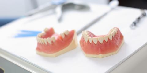Dansville Dentist Explains What You Should Know About Dentures, Dansville, New York