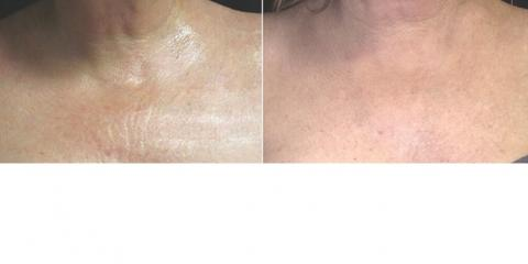 Rejuvenating Décolleté & Crepey Skin with Photorejuvenation, Lake Worth, Florida