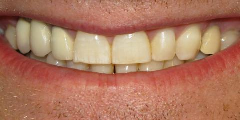 4 Amazing Benefits of Dental Implants, Anchorage, Alaska
