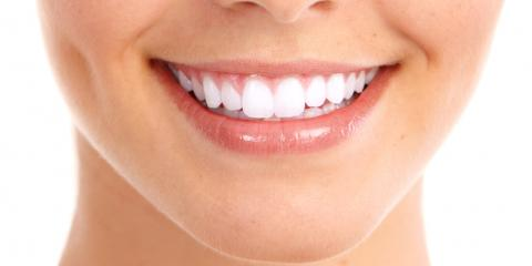 3 Facts About Dental Bonding From Your Local Dentists, Stuarts Draft, Virginia