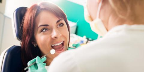 How Are Dental Bonding & Veneers Different?, Wisconsin Rapids, Wisconsin