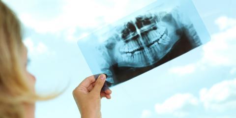 How Dental Bone Grafting Works, High Point, North Carolina