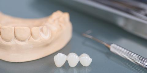 3 Types of Dental Bridges That Will Repair Your Smile, Scottsboro, Alabama