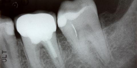 Dental Care Tip: 5 Signs You May Need a Root Canal, Anchorage, Alaska