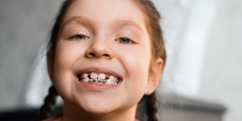 Dental Care for Children: Why You Shouldn't Delay Orthodontic Treatment, Kahului, Hawaii