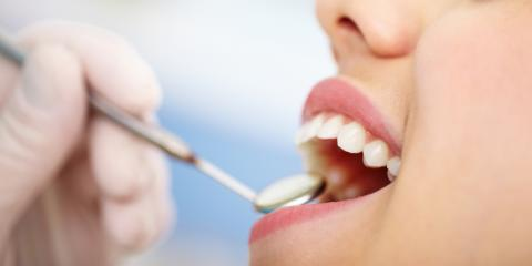 What to Expect From a Dental Crown Procedure, Headland, Alabama
