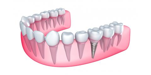 Why Some Dental Implants Work And Others Don't, North Branch, Minnesota