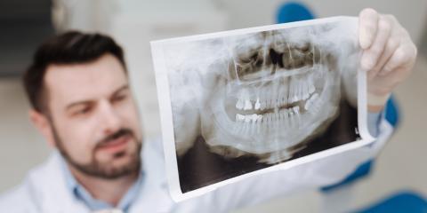 How Jaw Bone Healing Can Impact Dental Implant Success, Anchorage, Alaska
