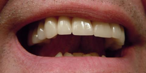Malvern's Dentist Explains the Dental Implant Procedure, Malvern, Arkansas