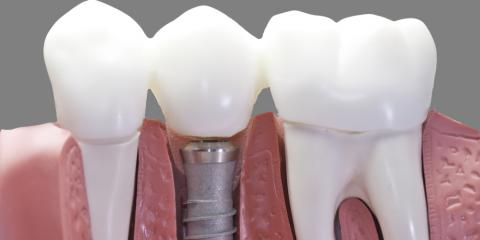 The Dental Implant: Discover Its Benefits, Meriden, Connecticut