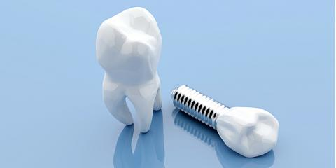 Top 5 Dental Implant Facts You Should Know Milford Pennsylvania