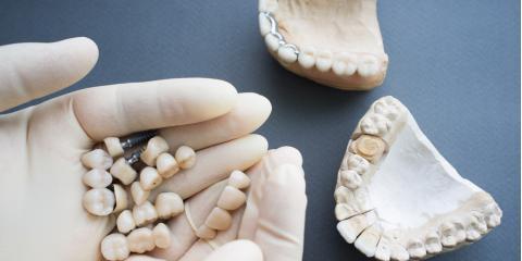 Which Is Right for You: Dental Implants or Dentures?, Kearney, Nebraska