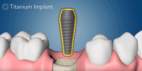 Interested in Dental Implants? Here Are Some General FAQs About the Procedure, New London, Connecticut