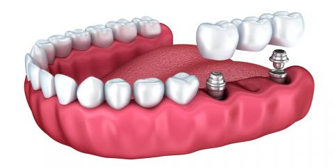 5 Reasons Dental Implants Are Better, Olive Branch, Mississippi