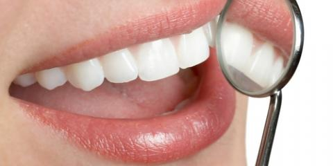 Before Scheduling Dental Implants, Consider These 3 Things, Scarsdale, New York
