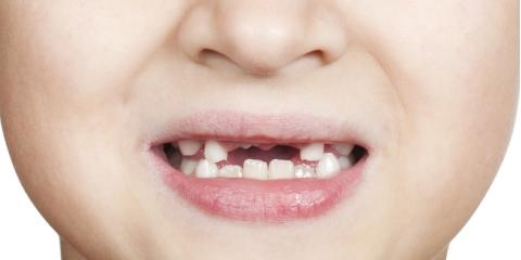 3 FAQs About Dental Implants & Premature Tooth Loss in Children, Waterloo, Illinois
