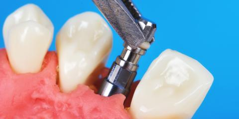 Dentistry 101: Your Simple Guide to Dental Implants, Anchorage, Alaska