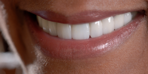 Are Veneers Right for You? 4 Tips From Kemper Pond Dental