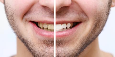 The Importance of Teeth Whitening: 3 Causes of Staining, Westminster, Colorado