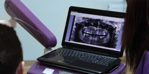 What Is CAD/CAM Dentistry?, Franklin Lakes, New Jersey