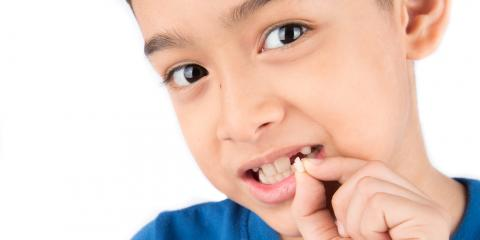 Dental Care Pros Explain What to Do When a Child Loses a Permanent Tooth, Ewa, Hawaii