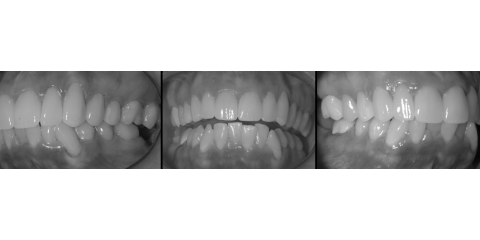 What Are Dental Crowns? Anchorage Dentists Explain the Basics, Anchorage, Alaska