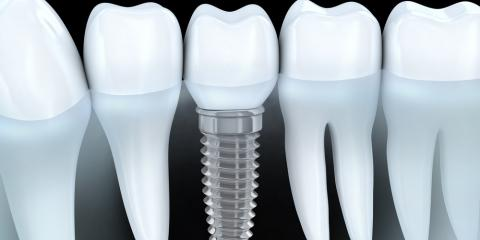 Dental Implants & Dentures: How the Tooth Loss Solutions Differ, Elyria, Ohio