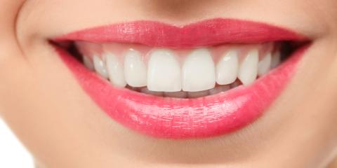 What You Need to Know About Dental Implants, Baraboo, Wisconsin