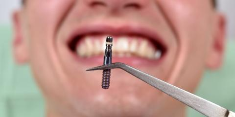 What to Expect When Getting Dental Implants, Ballwin, Missouri