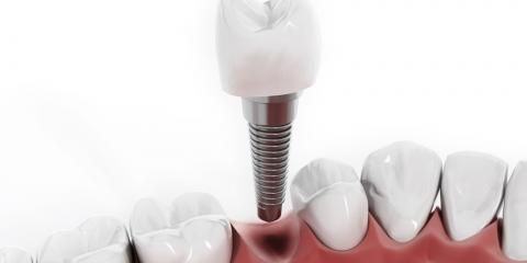 What Are Dental Implants?, Waynesboro, Virginia