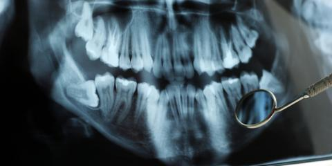 Could the Pain in Your Mouth Indicate a Need For Dental Surgery?, Anchorage, Alaska