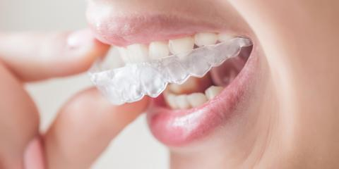 The Difference Between Invisalign® & Traditional Dentistry Braces, Kalispell, Montana