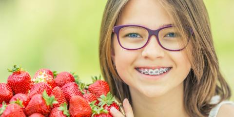 Dentist's Recommendations: 3 Foods to Avoid While Wearing Braces, Bronx, New York
