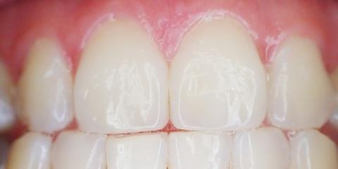 Periodontics offered by Dr. Thames office located in Collierville, TN & Lee County, MS, Collierville, Tennessee