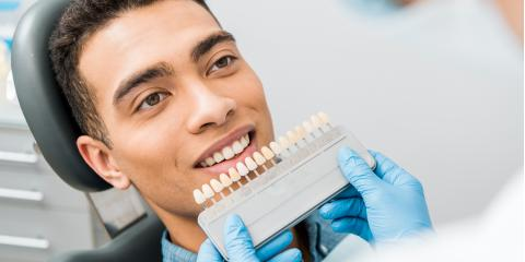 3 Steps in the Teeth Whitening Process, Dansville, New York