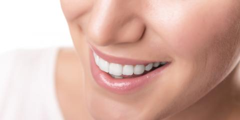 Dentist Shares 3 Tips for Maintaining a Healthy Mouth, Fort Wright, Kentucky
