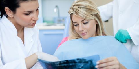 4 FAQ About Dental X-Rays, Issaquah Plateau, Washington