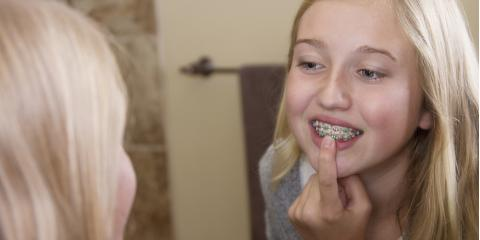 3 Tips for Flossing With Braces, Concord, North Carolina