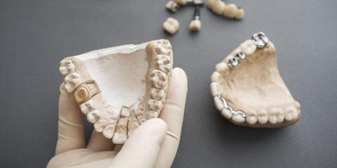 Dentist Explains the Process of Getting a Crown, Kearney, Nebraska