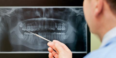 Why Does Your Child Need Dental X-Rays?, Honolulu, Hawaii