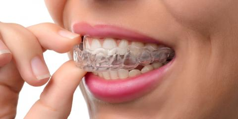 3 Major Benefits of the Invisalign® Treatment for Adults, Perry, Georgia