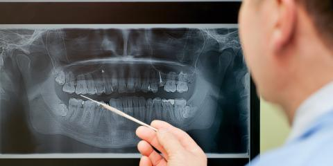 Why Are Dental X-Rays So Important?, Vanceburg, Kentucky